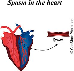 Spasm of the arteries of the heart Infographics Vector...