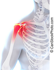 Painful Shoulder Illustration