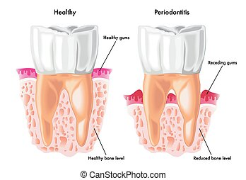 periodontitis - medical illustration of the symptoms of...