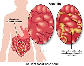 peritonitis - medical illustration of the symptoms of...