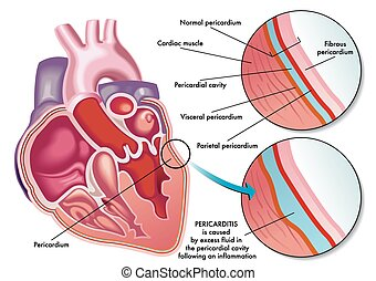 pericarditis - medical illustration of the symptoms of...