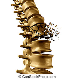 Spine Fracture - Spinal Fracture and traumatic vertebral...