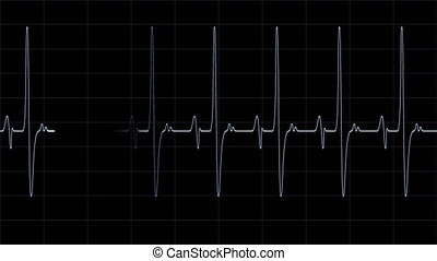 Heartbeat Monitor Line - A regular and healthy heartbeat...