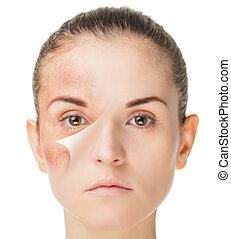 Skin care treatment before and after, beauty concept - Skin...