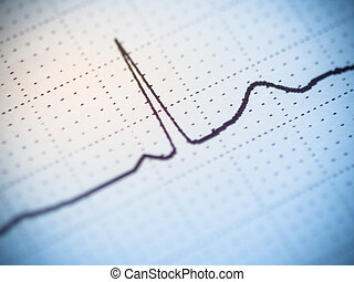 Close up of an electrocardiogram - Close up of an single...