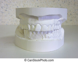 White plaster mouth - White plaster upper and lower teeth...