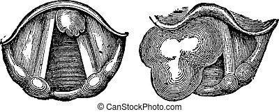 Fibroids of the Larynx, vintage engraving