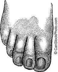 Faulty position of the big and second toe, vintage engraving.