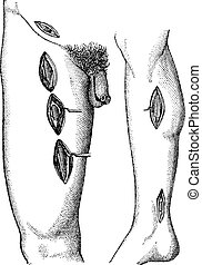 Fig 762 - Showing groin point at which you can perform...
