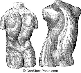 Cast of two varieties of scoliosis, vintage engraving - Cast...