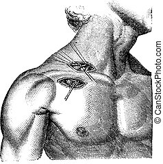 Ligation of the artery and axillary subclavian, vintage...