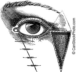 Fig 180 Blepharoplasty by the method of Dieffembach, vintage...