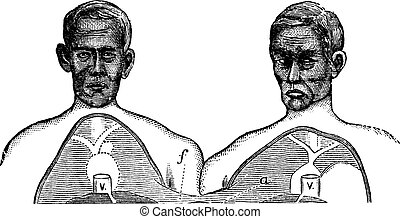 Siamese twins. V. Vena cava. f. Upper limit of the common...