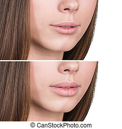Female lips before and after augmentation - Beautiful female...