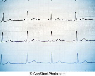 Close up of an electrocardiogram - Close up of an...