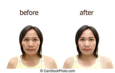 makeup or plastic surgery. - Asian middle-aged woman before...