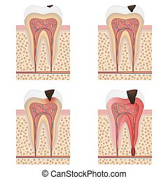 Development of dental caries illustration - Stages of tooth...
