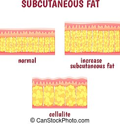 leather sectional layer of subcutaneous fat, cellulite...