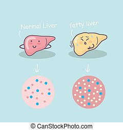 Health liver vs Fatty liver, great for health care concept