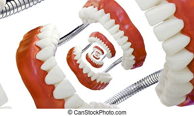 Droste Denture Model Zoom - Denture Model Droste Loop Effect