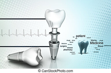 Dental implant - Digital illustration of Dental implant in...