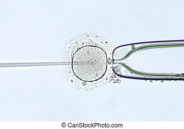 artificial insemination by intracytoplasmic sperm injection...