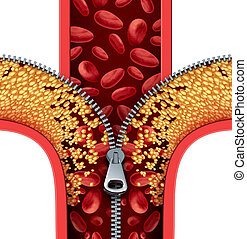 Atherosclerosis Therapy - Atherosclerosis therapy cleaning...