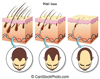 Hair loss - medical illustration of the effects of the hair...