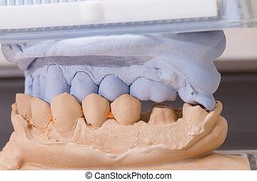Dental Mold For Prosthetic Teeth