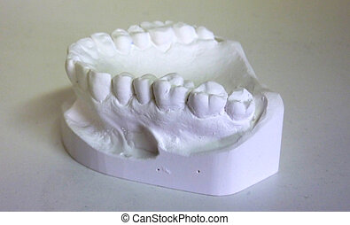 Plaster teeth - White plaster teeth for dental technician
