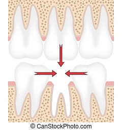 Illustration of missing tooth - Teeth are moving to fill...