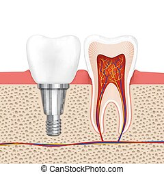 Healthy teeth and dental implant Implant tooth, health tooth...