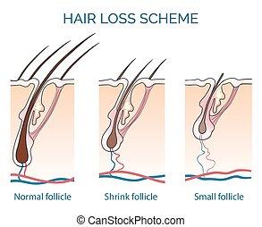 Hair loss scheme. Loss hair, growth hair problem, health...