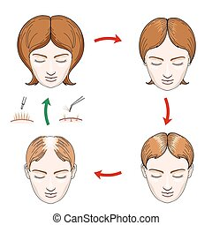 Female hair loss and transplantation icons - Female hair...