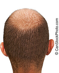 Bald head - Bald hair head of adult men completely balding