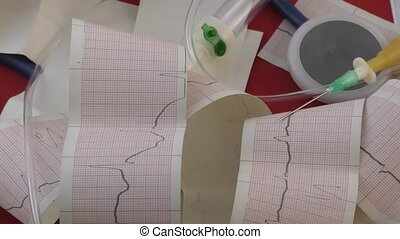 Electrocardiogram of the heart - The result of the...