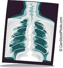X-ray Film - Vector Illustration of X-ray Film Result