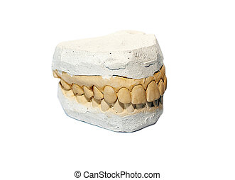 false plaster teeth for prosthesis white background
