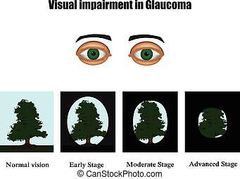 Glaucoma. The field of vision in glaucoma. Infographics....