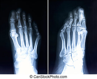 X-ray of foot fingers.Radiography with deformed toes.Hallux...