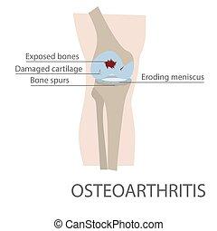 osteoarthritis human knee joint disease. vector format...