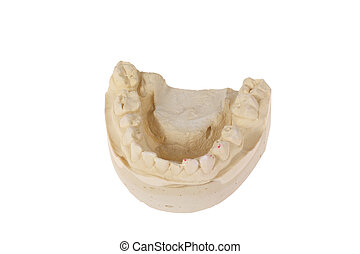 cast of the jaw - cast of  jaw, photo on white background