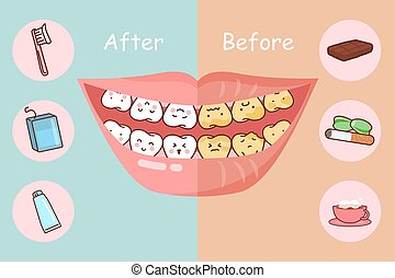 Dental care concept - Before and after teeth, great for...