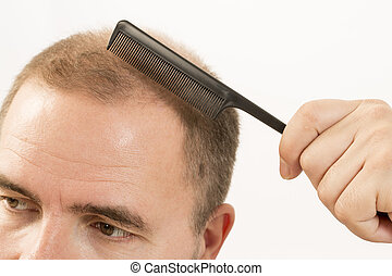 adult man hand holding comb on bald head - 40s man with an...