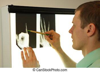 radiografía, imágenes, Mirar, mano