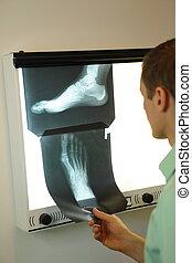 imágenes, pie, radiografía