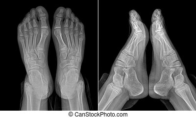 X-ray image of the girl's feet (two views with partially outlined socks and trousers)
