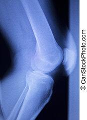 Knee and meniscus injury xray scan - Knee and meniscus...