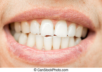 teeth. close-up