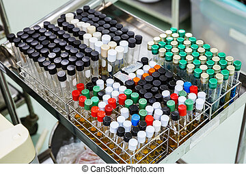 Dirty laboratory test tubes in racks - Close up dirty test...